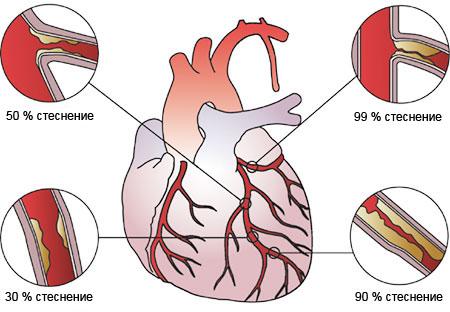 Атеросклероза и исхемична болест на сърцето?